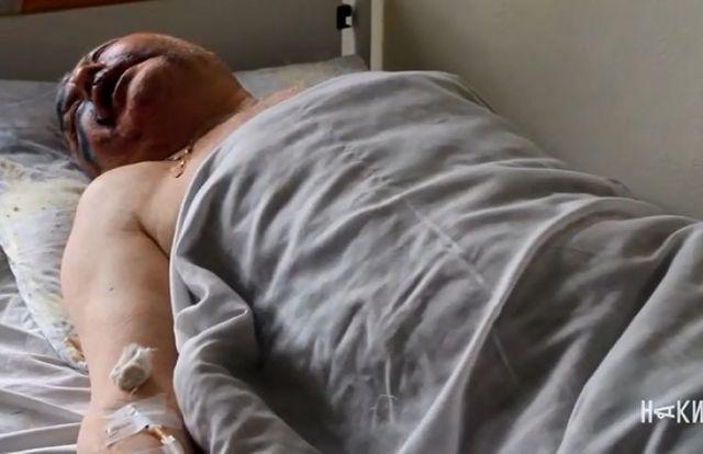 Опубликовано видео с жестоко избитым отцом харьковского депутата Родзинского
