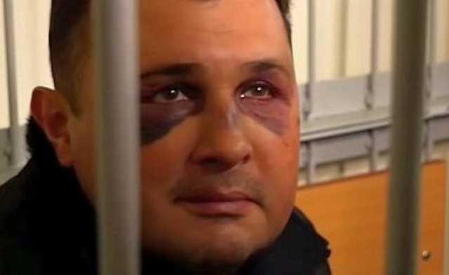 СБУ прокомментировала синяки экс-депутата Шепелева